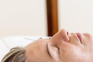 Acupunctuur Priktijk Westerpark