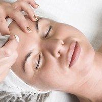 Laser Treatment - Thread Veins