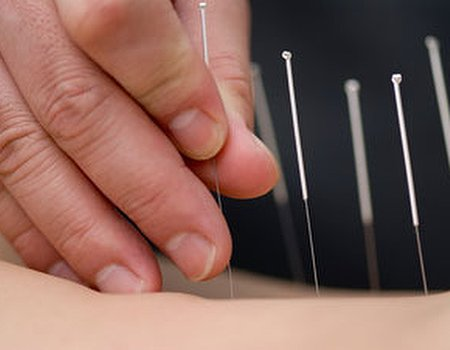 Know your needles with Acupuncture Awareness Week