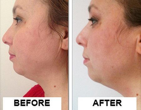 Goodbye turkey neck: skin tightening treatment at Pulse Laser Clinic