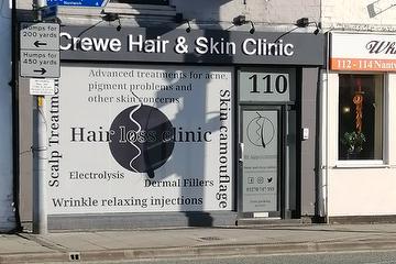 Crewe Hair & Skin Clinic