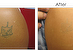 Tattoo Removal by High Power QSwitch  Laser