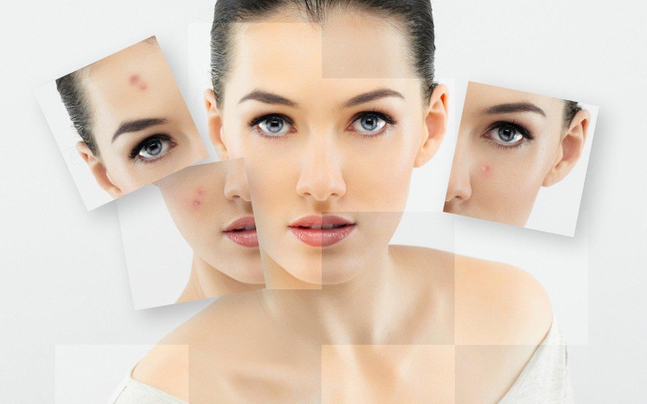 Facial black mole homeopath treatment stripper stripping chinesgirls