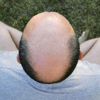 Hair Simulation