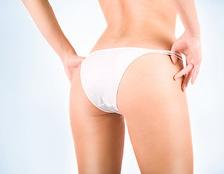 Salvage your skin: how to eliminate stretch marks