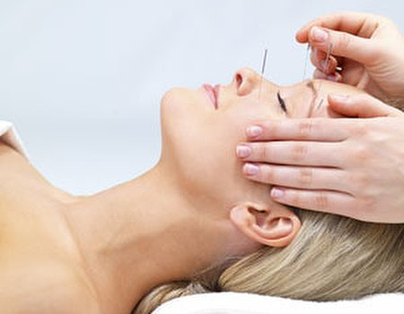 Acupuncture points to new hope for stress sufferers