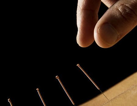 Acupuncture found to help reduce hot flushes